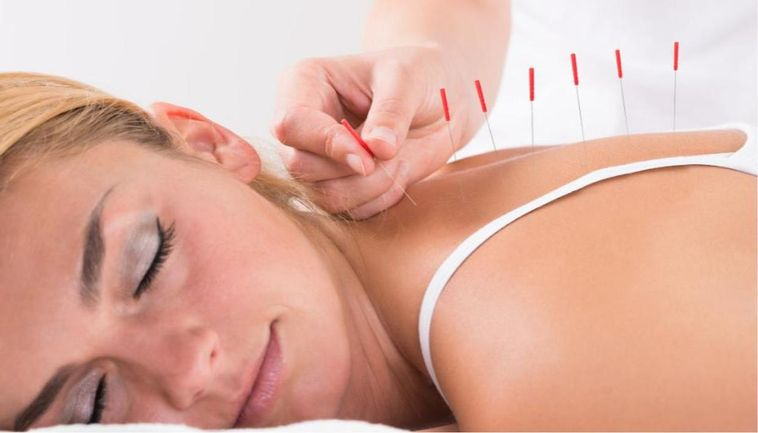 What is Acupuncture Therapy and Benefit