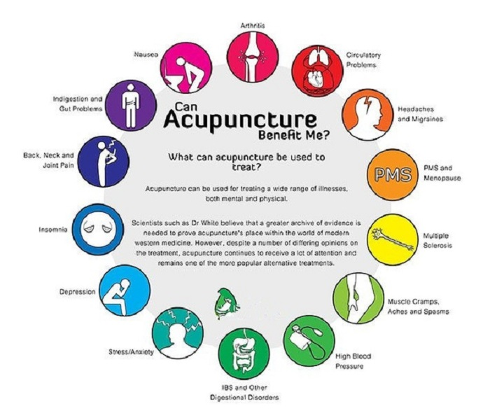 What is Acupuncture Therapy